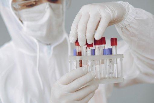 Raseinių rajone nustatyta 16 naujų koronaviruso atvejų