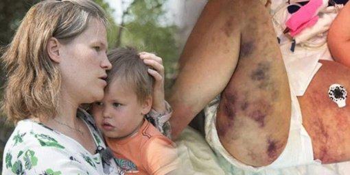 Motina manė, kad jos sūnui įgėlė vapsva, tačiau padėtis buvo kur kas rimtesnė