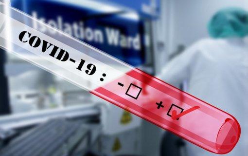 Švietimo įstaigų darbuotojai galės atlikti tyrimą dėl koronaviruso