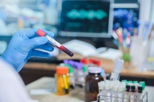 Nacionalinės laboratorijos vadovas: priemones COVID-19 tyrimams pavyko įsigyti pigiau