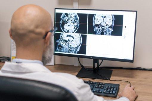 Neįtikėtinas Kauno medikų darbas – išgydytas 40 metastazių smegenyse turėjęs vyras