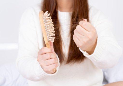 Slenkantys plaukai išdavė sunkią ligą