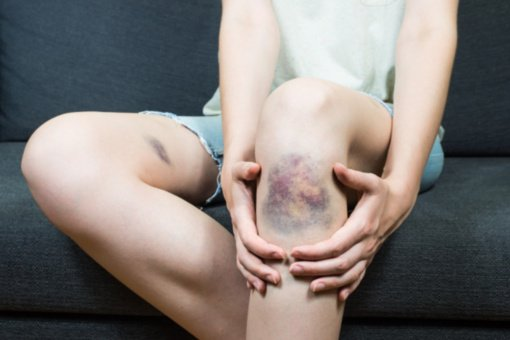 Lengvai įsitaisote mėlynę: tai gali būti rimtų ligų požymis