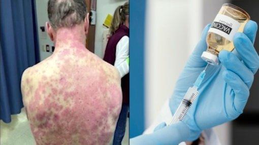 Po koronaviruso vakcinos vyrui pasireiškė baisi reakcija: stipriai išbertas kūnas