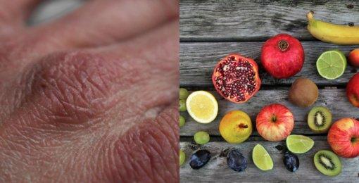 7 požymiai, kad jums kritiškai trūksta vitamino C