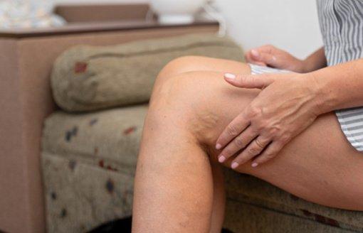 Ligonių kasos: kojų venų operacijos apdraustiesiems yra nemokamos