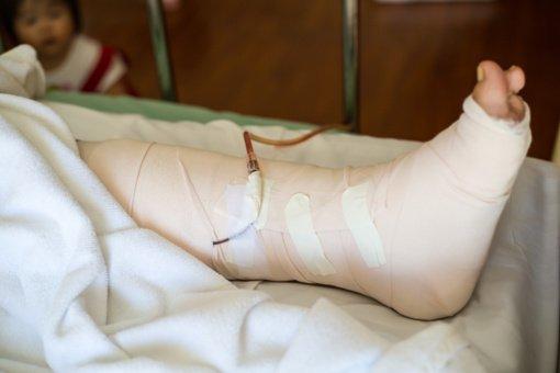 Motoroleriu važiavę neblaivūs vaikinai kelionę baigė ligoninėje