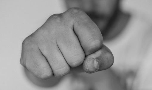 Vilniuje sumuštas jaunuolis, Kaune grupė asmenų sumušė vyrą
