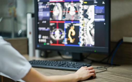 Pilvo aortos aneurizma per metus pasiglemžia tūkstančius gyvybių: ar galima jas išsaugoti?