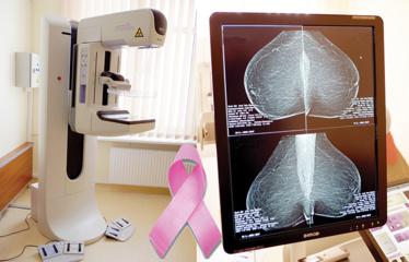 Ypatinga Utenos ligoninės dovana moterims Kovo 8-osios proga – mamografas