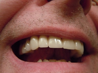 Kam žmonėms reikalingas tas gerklėje tabaluojantis liežuvėlis? Kokią funkciją jis atlieka?