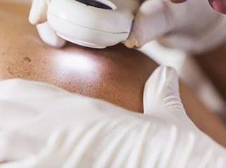 Dermatovenerologas moterims – pagalba, kai jos labiausiai reikia