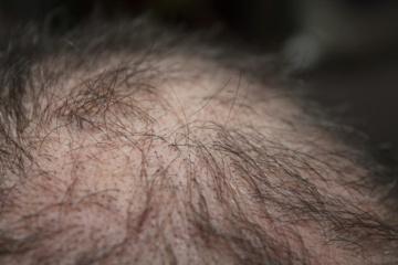 Pritardama A. Verygai onkologė chemoterapeutė paaiškino apie plaukų slinkimą