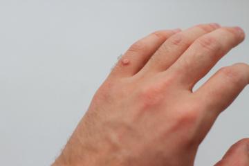 Karpos – neestetiškas apie imuniteto problemas signalizuojantis negalavimas