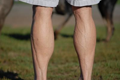 Kojų venos. Flickr.com