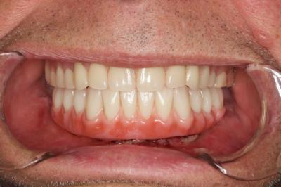 Apatinio žandikaulio dantų, tvirtinamų ant 3 (trijų) dantų implantų, bazinė dalis yra pagaminta iš tvirto balto cirkonio oksido, o individuali dantų forma išgaunama patvarios akrilo apdailos metu, kol pacientui sriegiami 3 (trys) dantų implantai.
